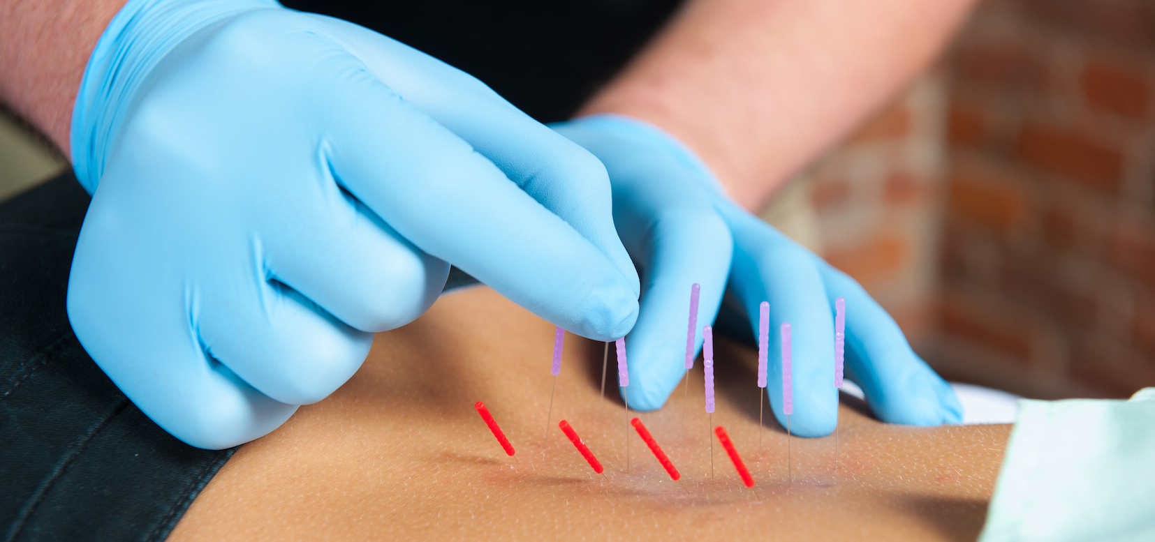 what is dry needling Dry needling is a manual therapy technique used in order to help alleviate pain  and dysfunction and to reduce inflammation the treatment involves using a thin .